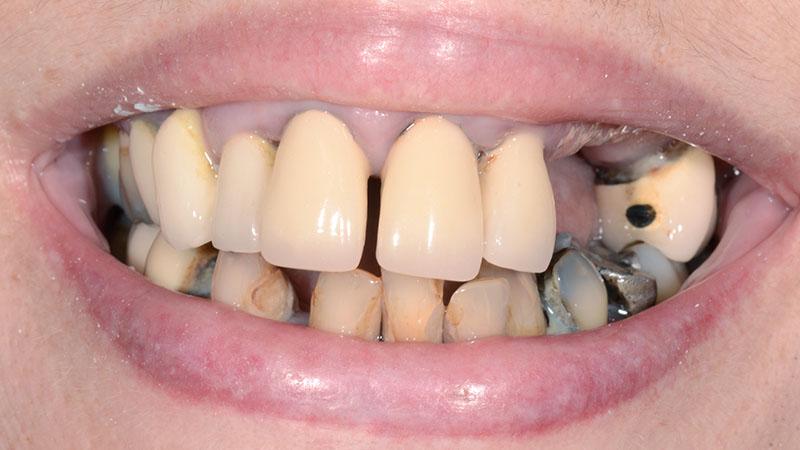dental implant results esher