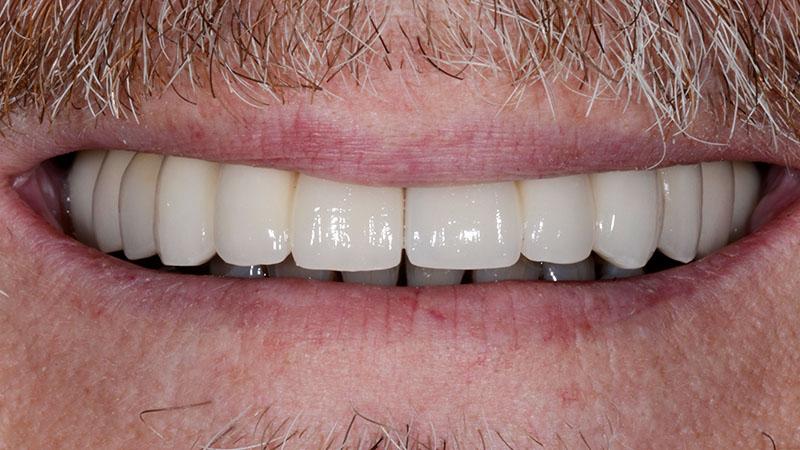 dental implant results heathrow