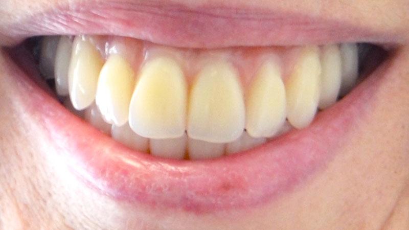 dental implant reviews esher