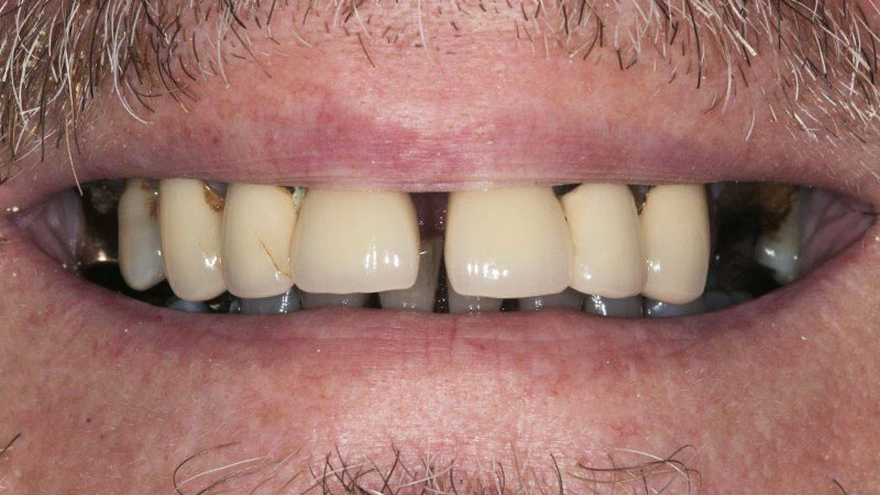 dental implants heathrow before and after