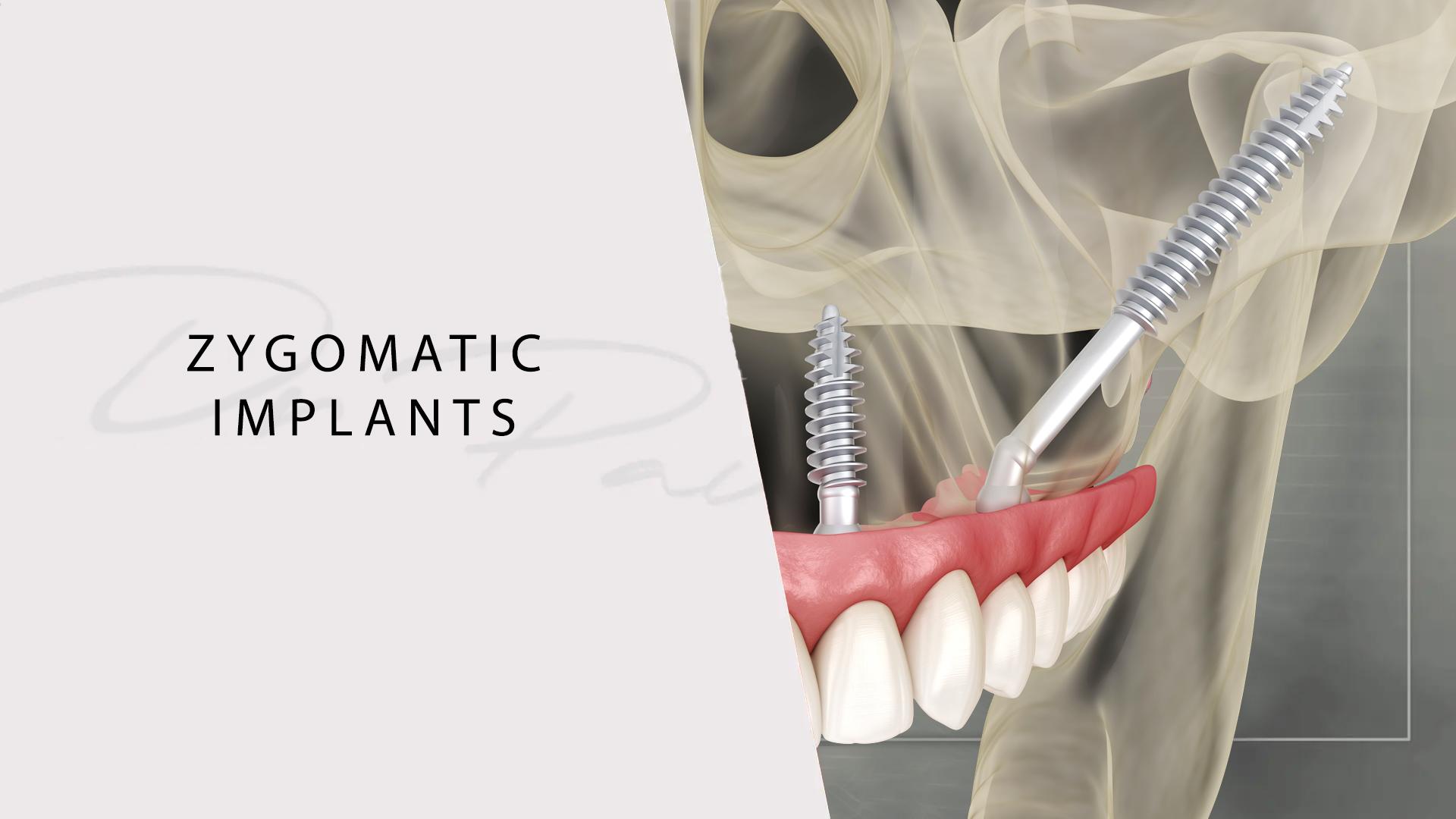 pav khaira implants